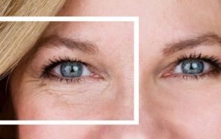 chirurgie esthetique posche sous yeux