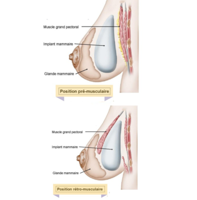 position augmentation mammaire