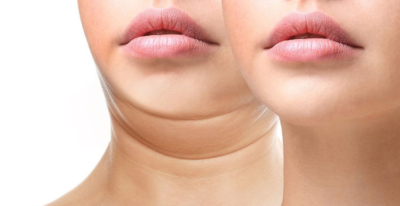 comment eliminer double menton chirurgie esthetique