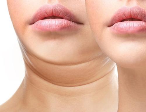 Comment éliminer le double menton grâce à la chirurgie esthétique ?