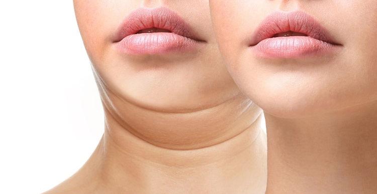 comment eliminer double menton chirurgie esthetique