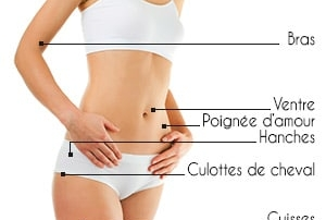 zones liposuccion