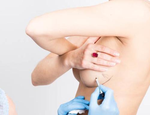 Les questions des patientes qui envisagent l'augmentation et le lifting mammaire