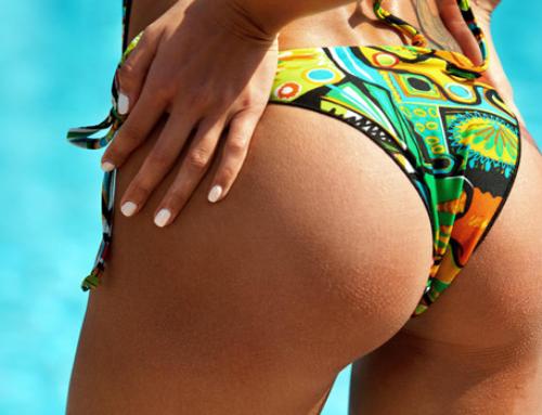 Ce à quoi s'attendre après un Brazilian Butt Lift : bienfaits et inconvénients