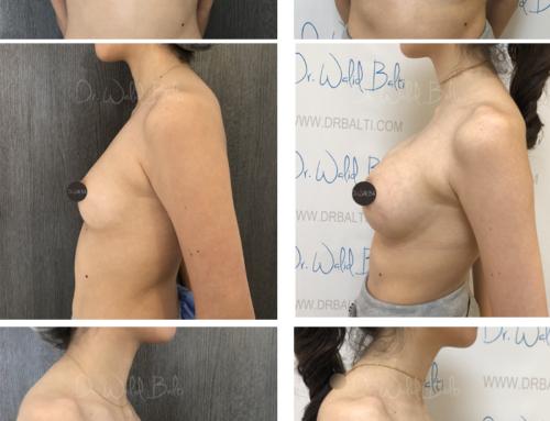 Augmentation mammaire dual plane