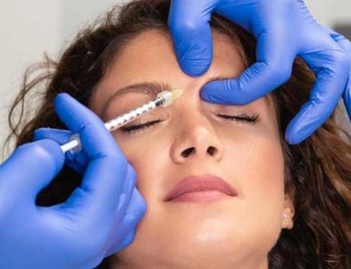 Injections de Botox : l'action et les atouts du traitement