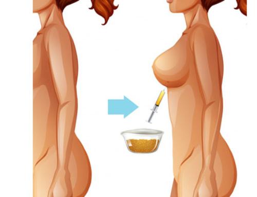 Lipofilling des seins : les variables qui influent sur le taux de survie de la graisse