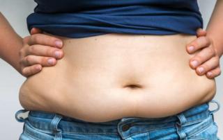 chirurgie ventre qui tombe tunisie
