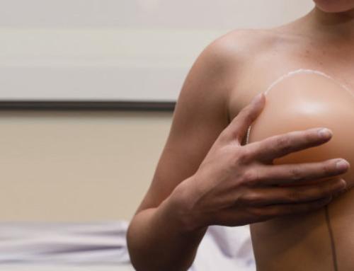 Convalescence après l'augmentation mammaire