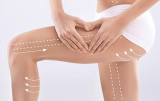 liposuccion jambe tunisie
