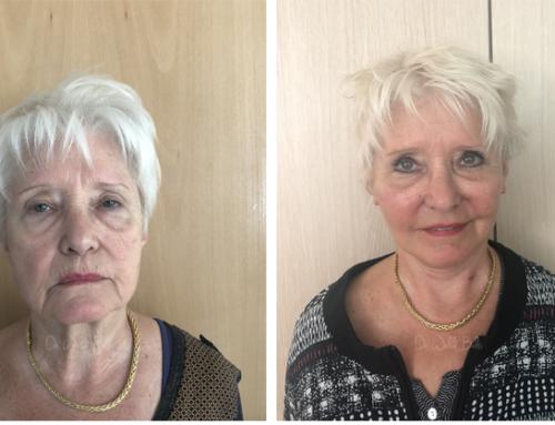 Lifting cervico-facial et lipofilling du visage