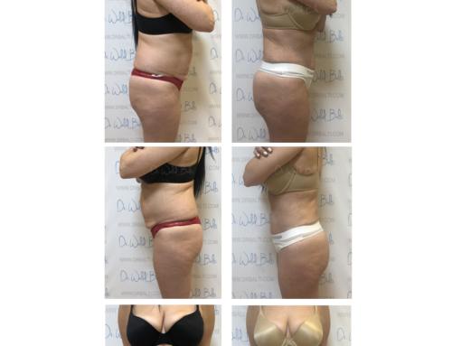 Plastie abdominale, lipoaspiration et lipofiling des fesses