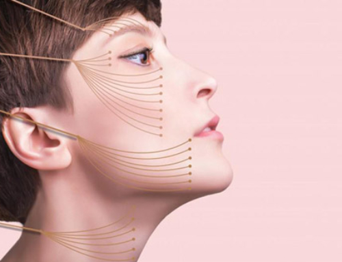 L'approche moderne du lifting du visage