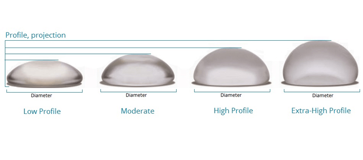 profile implant mammaire tunisie