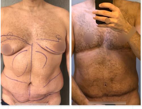 Liposuccion, reprise plastie abdominale faite par un autre chirurgien et gynécomastie