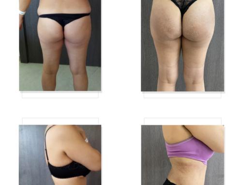 Liposuccion 360 et lipofiling des fesses