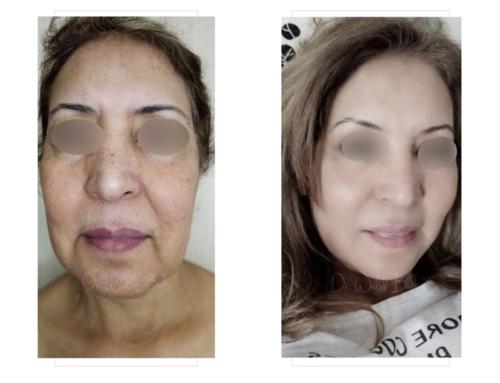 Lifting cervico-facial, lipofilling, platysmaplastie et liposuccion du cou