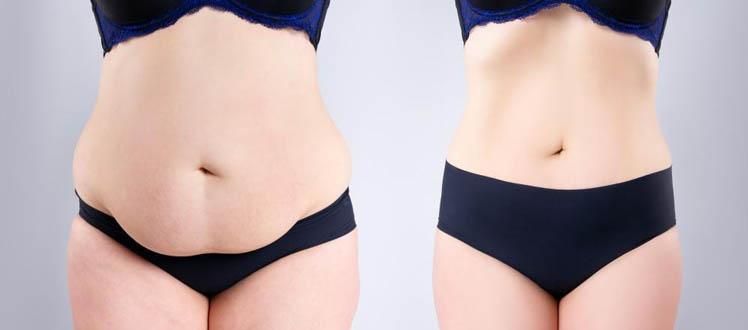 chirurgie ventre