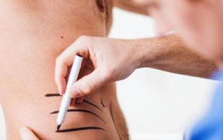 Les types d'implants les plus demandés chez les hommes