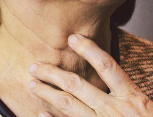 Les traitements à choisir pour corriger le relâchement du cou (deuxième partie)
