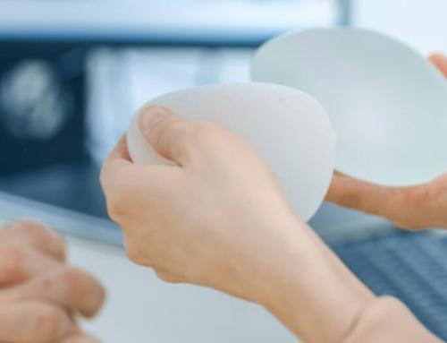 Changement des prothèses mammaires : Quand faut-il les remplacer ?