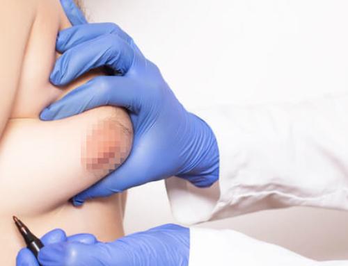 Les causes et facteurs de risque de la gynécomastie