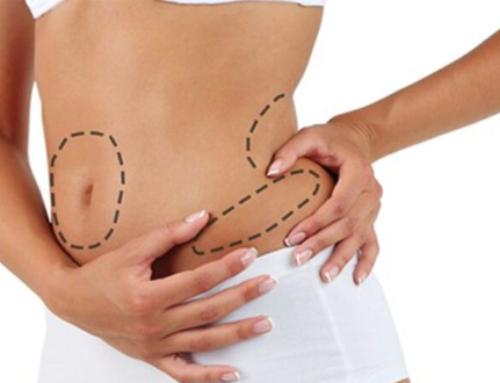 Liposuccion et transfert de graisse : deux interventions fréquemment combinées