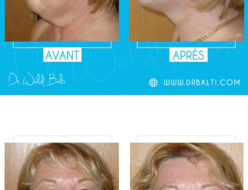 Lifting cervico-facial, liposuccion du cou & blépharoplastie