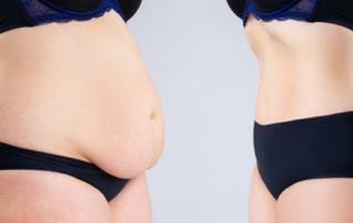 La meilleure façon de se débarrasser des gonflements après une abdominoplastie