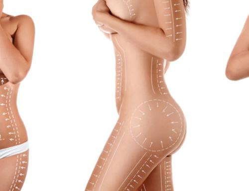 La liposuccion : à qui elle s'adresse et quelles sont les zones traitées ?