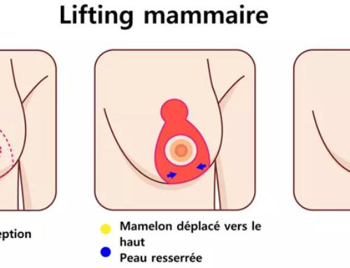 Les cicatrices du lifting mammaire