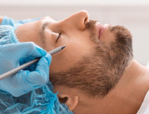 Les particularités du lifting du visage pour hommes